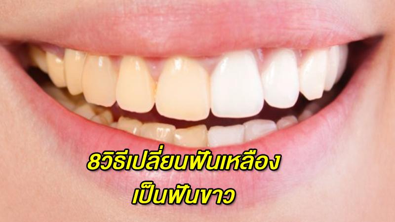 8 วิธีทำให้ฟันขาว แก้ปัญหาฟันเหลือง